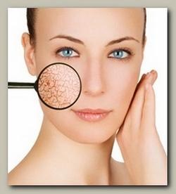 száraz arcbőr elsődleges oka